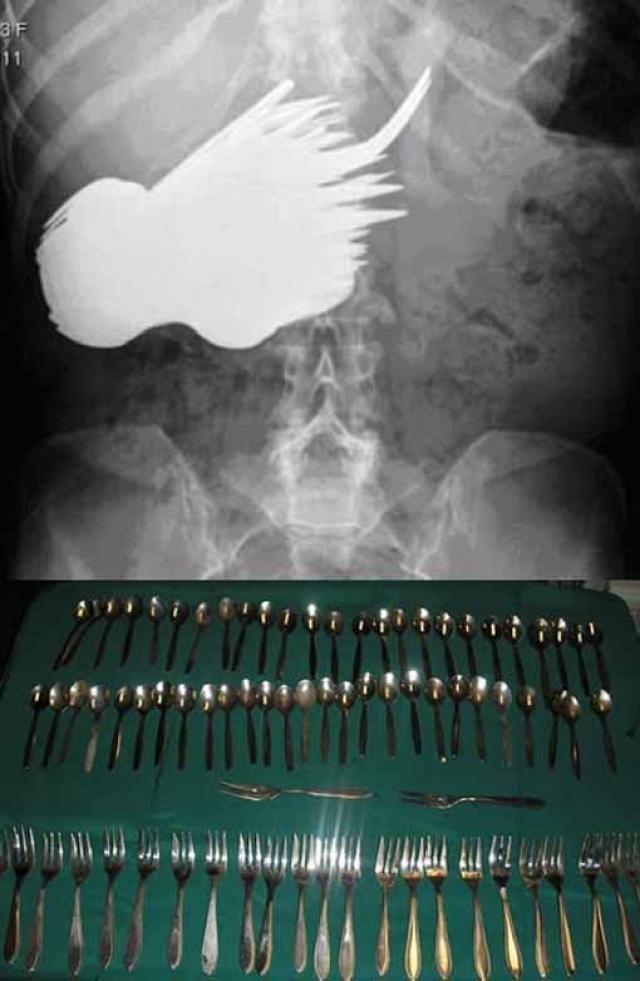 Каково было удивление голландских докторов, когда они увидели в желудке своей 52-летней пациентки 78 столовых приборов! Хирурги немедленно отправили женщину на операцию с тем, чтобы извлечь десятки вилок и ложек из ее организма.Нетяжело догадаться, что пострадавшая имела серьезные отклонения в психическом развитии.