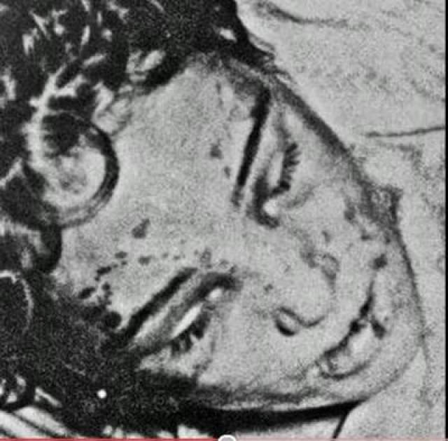 Следствие установило, что на теле убитой были множественные травмы и ожоги.