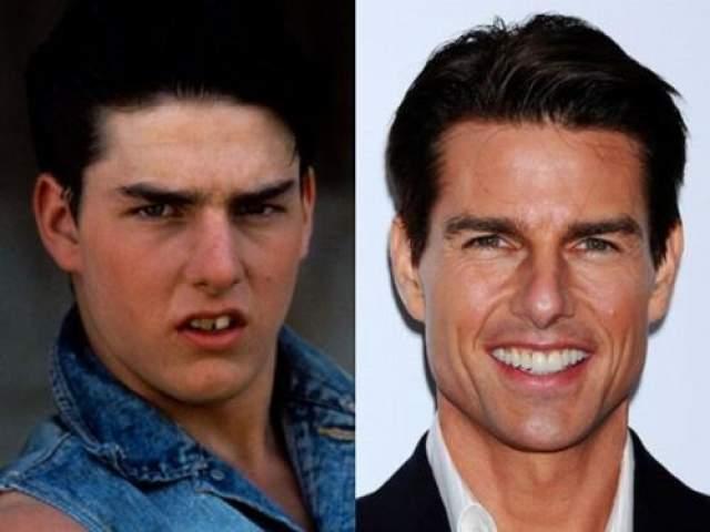 Том Круз В юности Том Круз был просто мечтой всякого дантиста - словно сказать, чего актер не делал со своим зубами.