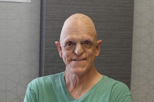 Майкл Берриман, 70 лет, США. Актер, который играет в кино в основном всяческих монстров, получил свой необычный внешний вид в результате редкого генетического заболевания - андрогитической эктодермальной дисплазии.