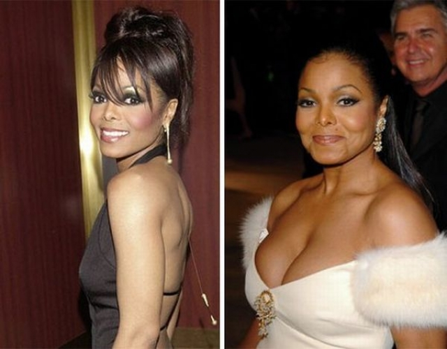 Рост размера груди при сравнении фото разных лет очевиден.