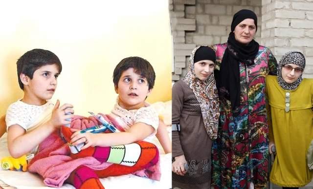 Зита и Гита Резахановы , родились 19 октября 1991 года. В 2003 году близнецам из Киргизии успешно провели операцию по разделению - они имели три ноги на двоих, общий таз, один на двоих мочевой пузырь и сросшийся толстый кишечник, одна матка и два яичника.