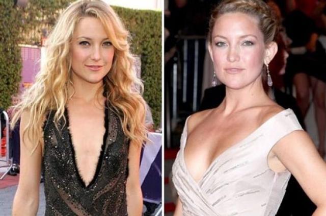 В возрасте 31 года грудь Хадсон неожиданно увеличилась и позволила ей красоваться в столь желанных предмета гардероба.