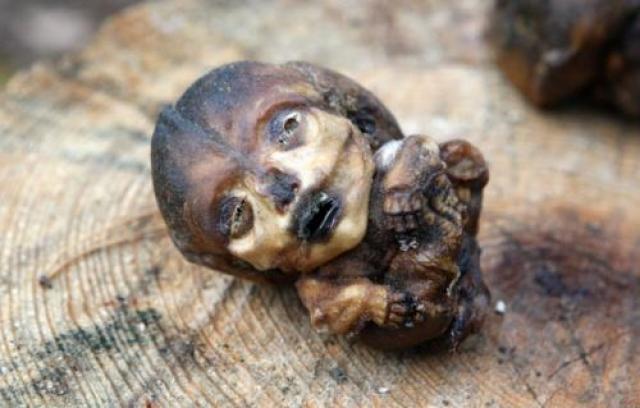 Как доказательство того, что последствия Чернобыля для людей куда более губительны, чем заявляли официальные власти, профессор собирал материал абортов. На не рожденных детей просто невозможно смотреть без ужаса.
