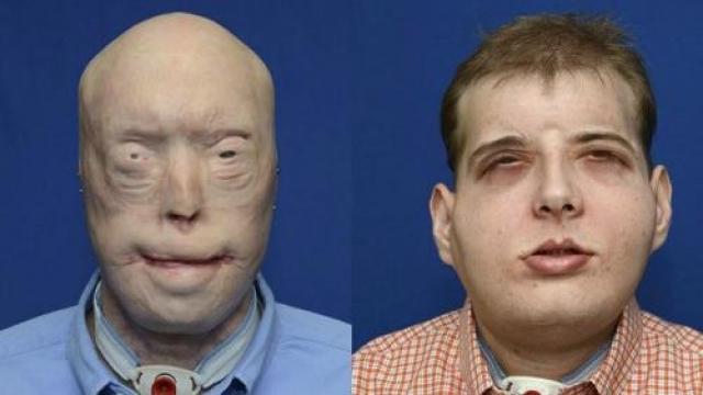 Тогда врачи решилипересадить Патрику новое лицо целиком — полный овал анфас, включая нос, уши, губы, веки.
