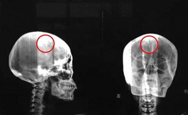Когда пациентка проходила проверку на металлоискателе перед процедурой МРТ, устройство издало звуковой сигнал. После того, как врачи увидели снимок, стало ясно, что в середине черепа Лю находилась 4,5-сантиметровая игла, с которой она жила почти с самого рождения!
