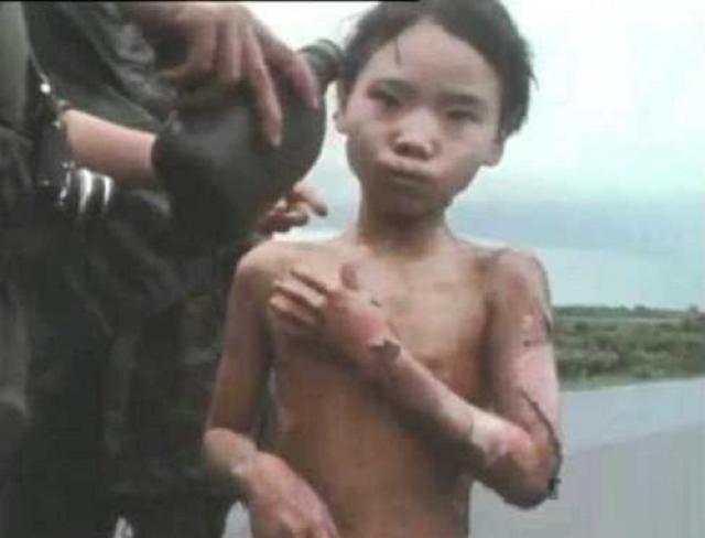 В госпитале врачи пришли к выводу, что полученные Ким Фук ожоги смертельны. Несмотря на это она выжила и после 17 пластических операций вернулась домой.