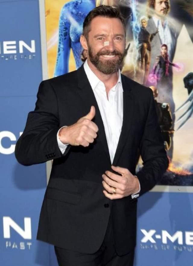 """7. Хью Джекман До того как Голливуд превратил его в Росомаху из """"Людей Икс"""", австралийский актер Хью Джекман был известен как артист мюзиклов. Прямо скажем, это профессия с не самой героической репутацией."""