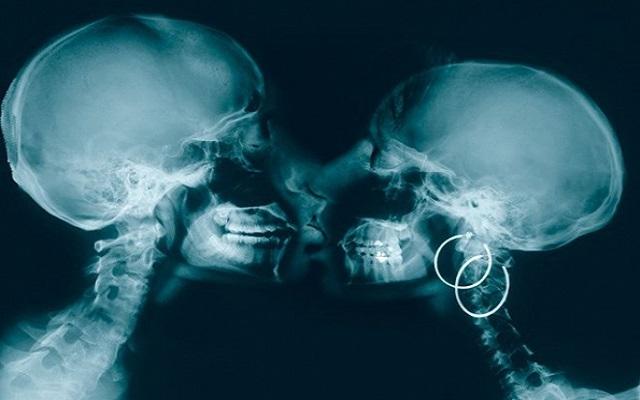 Так выглядит поцелуй в рентгеновском излучении.