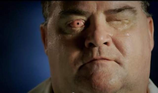 Но, благодаря необычной операции он смог вновь обрести зрение. Процедура включала в себя удаление зуба мужчины и использование его в качестве держателя для линзы. Зуб вставили в глаз, и теперь у Джонса практически идеальное зрение в правом глазу.