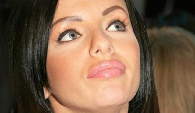 Артистка увеличила себе объем губ, сделала бюст третьего размера и оригинальные брови.