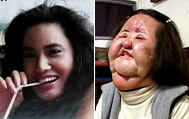 Ханг Миоку. Казалось бы, что нужно было для счастья южнокорейской девушке, работающей моделью? Но Ханг была недовольна своим лицом и решила кое-что исправить.