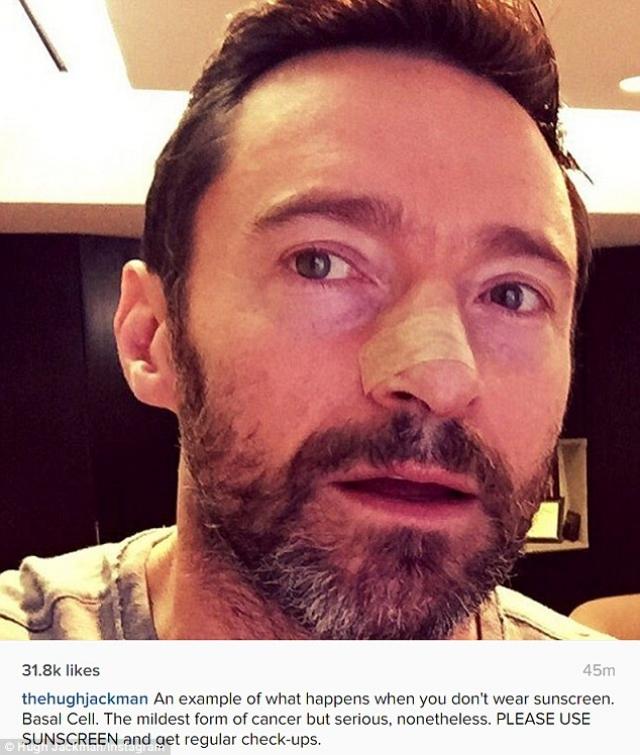 Хью Джекман. В 2014 году у актера обнаружили злокачественное образование – меланому на носу. Тогда Хью выложил несколько фото с заклеенным носом, сообщив поклонникам данную новость.