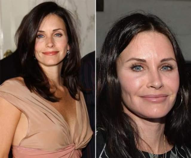 """Кортни Кокс Внешность звезды сериала """"Друзья"""" активно обсуждали в июне 2014 года, когда в Лос-Анджелесе она предстала перед публикой со слегка """"замороженным"""" лицом (справа). Известно, что у актрисы двоякое отношение к ботоксу. Использовать она его использовала, но любить- никогда не любила."""
