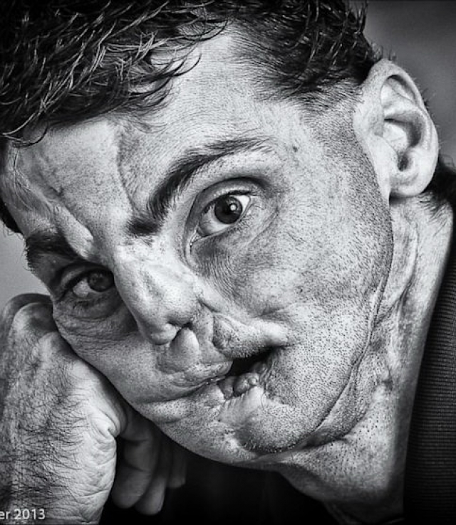 С тех пор жизнь Ричарда превратилась в настоящий ад. Лицо его было изуродовано до неузнаваемости – его просто словно больше не было. Так, кости на нижней половине его лица были раскрошены вдребезги, и от его челюстей словно бы не осталось совсем ничего, нос его превратился в бесформенное нечто, а от языка осталась лишь часть.