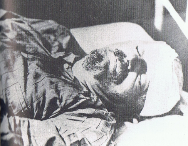 Раненого увезли в больницу, и только там он потерял сознание.