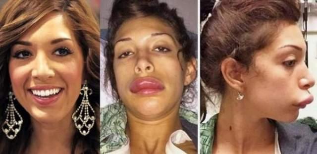 """Фарра Абрахам. Бывшая участница популярного на MTV шоу """"Беременна в 16"""" недавно решилась увеличить губы. Как мы видим, что-то пошло не так и девушка стала похожа на утку."""
