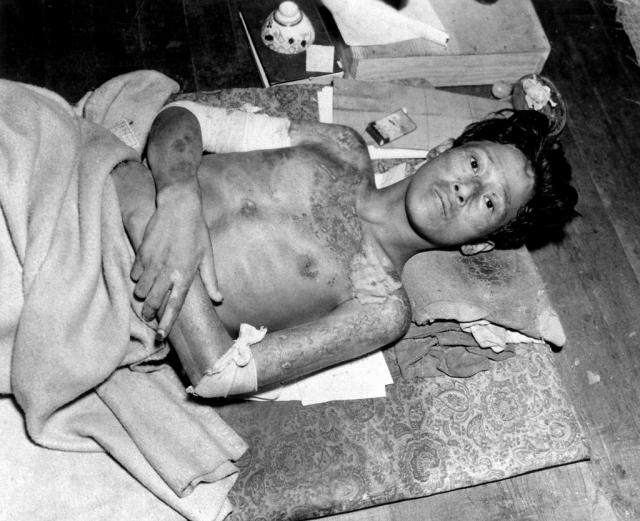 Жертва бомбардировки в Нагасаки.