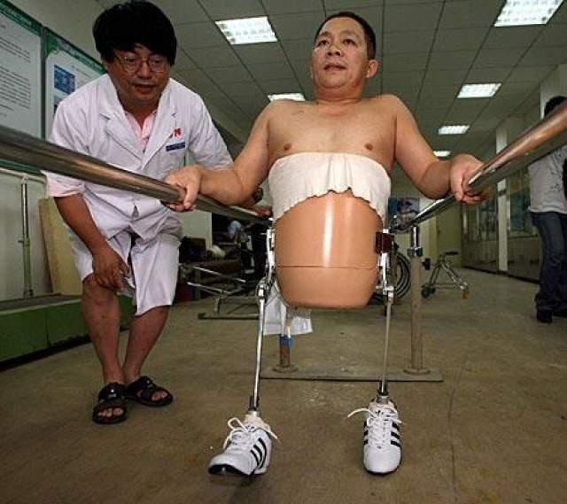 Мужчина смог не только выжить, но начал ходить благодаря специально разработанным протезам с биотическими ногами.