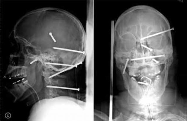 Строителя из Лос-Анджелеса привезли в травматологию после неудачного обращения с опасным оружием – гвоздометом. В результате несчастного случая в голове пострадавшего оказалось шесть гвоздей.