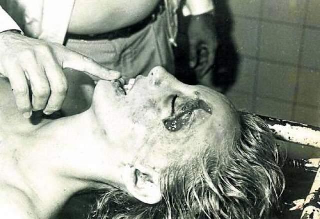 На теле женщины были обнаружены многочисленные следы побоев.