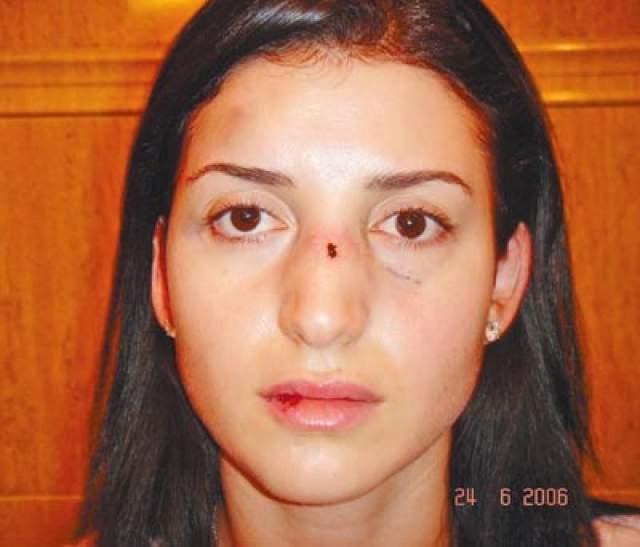 """В 2006 году девушка попала в больницу с диагнозом """"закрытая черепно-мозговая травма"""". Ее тело покрывали синяки и гематомы, нос был сломан."""