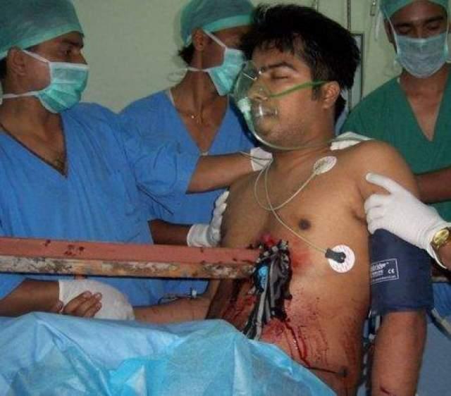 Парень выжил после того, как штырь пронзил его грудную клетку насквозь Супратим Датта, 23-летний индийский таксист 12 июля 2008 года получил страшную травму. Во время автомобильной аварии его грудь пронзил железный штырь.