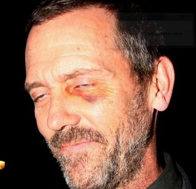 Актер Хью Лори попал в объектив папарацци с фингалом под глазом.