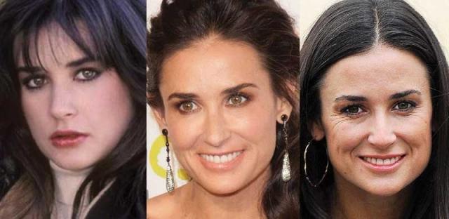 Деми Мур. Актриса делал коррекцию носа, подбородка, губ и груди.