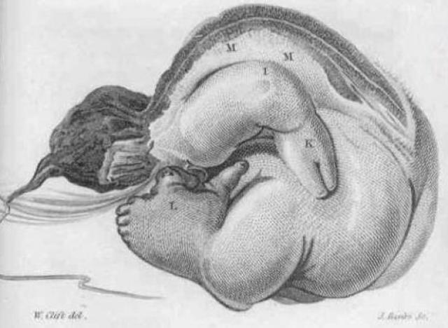 """В 1999 году, его забрали в больницу с жалобами на боль, и врачи решили удалить """"огромную опухоль"""". Оказалось, что в животе находилось """"странное наполовину сформированное существо с ногами и руками""""."""