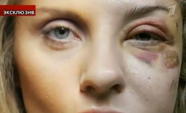 По признанию Екатерины, Марат не единожды поднимал на нее руку. Сразу после выздоровления женщина подала на развод.