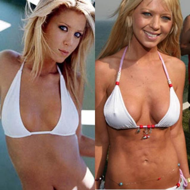 Тара Рейд. Актриса из молодежных комедий частенько прибегала к помощи хирургов, особенно по поводу липосакции и увеличения груди, из-за чего ее фигура стала довольно странной.