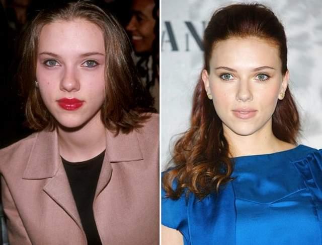 Но хирург актрисы отлично поработал с хрящами и мягкими тканями, что и сделало лицо более гармоничным, пропорциональным и утонченным.
