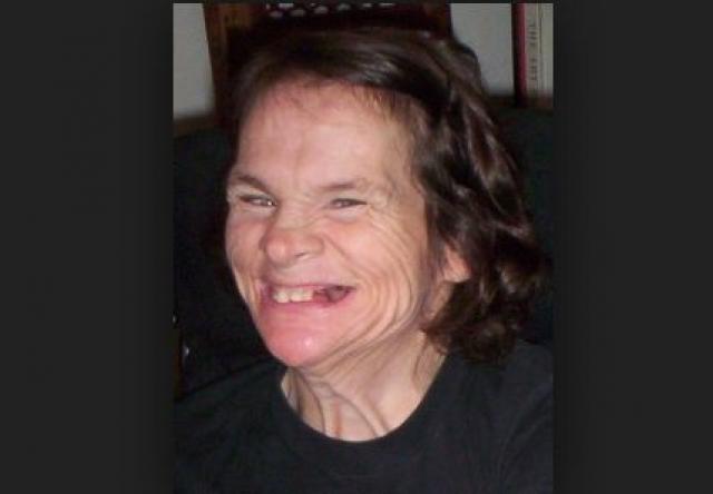 """О своей жизни Анна Макдональд написала мемуары под названием """"Выход Анны"""", которые были впоследствии экранизированы. Теперь Анна пишет книги, у нее есть семья. Кроме того, она ведет активную общественную деятельность по борьбе за права инвалидов."""