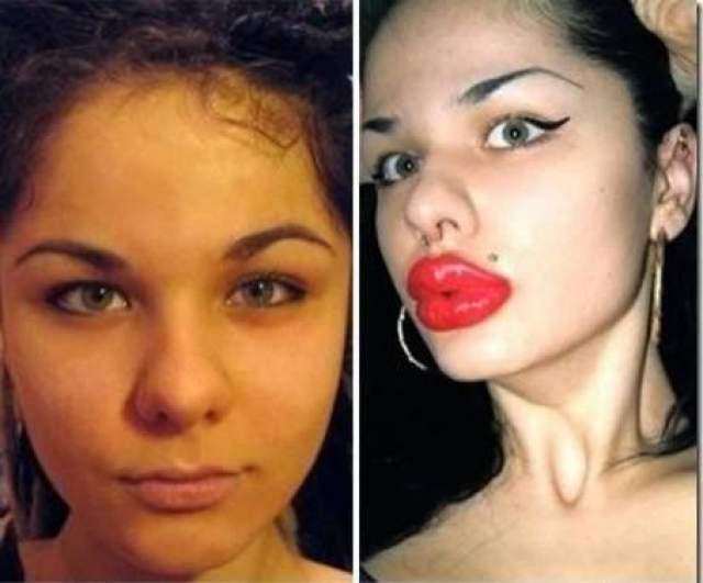 """Кристина Рэй. Первые инъекции филлеров в губы Кристина сделала еще в 17 лет. Тогда девушка считала себя жутко непривлекательной. Теперь, уже после сотни инъекций, она полностью довольна своим внешним видом. И знаменита на весь мир - ведь ее губы теперь в """"Книге рекордов Гиннесса""""."""