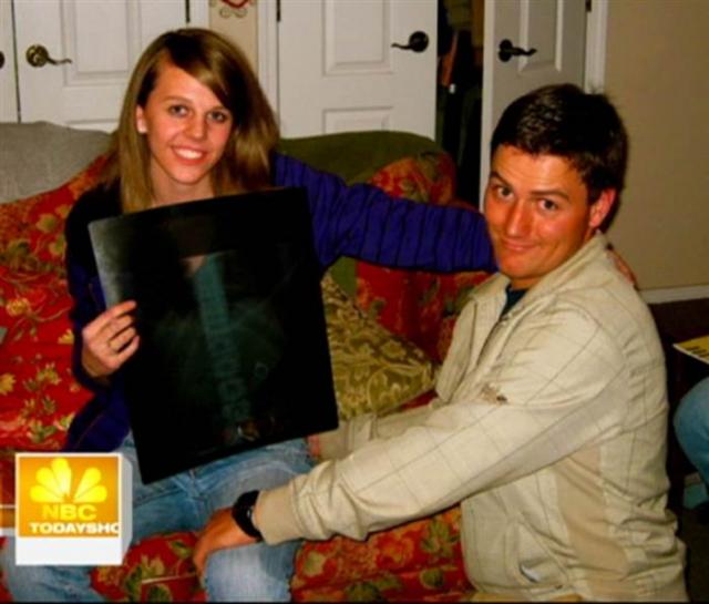 После того, как ей был сделан рентгеновский снимок, девушка поверила рассказу друга и предложение приняла.