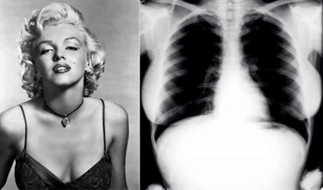 Снимки сделали медики в ноябре 1954 года, когда знаменитость обследовалась в Cedars of Lebanon Hospital во Флориде с диагнозом эндометриоз. Организаторы торгов планировали продать снимки ее груди всего за 3 тыс. долларов, но выручили гораздо больше.