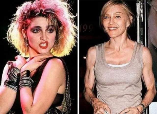 Мадонна Звезда поп-музыки на снимках папарцце предстает в невыгодном свете, на ее лице видны возрастные изменения и проблемы с кожей..