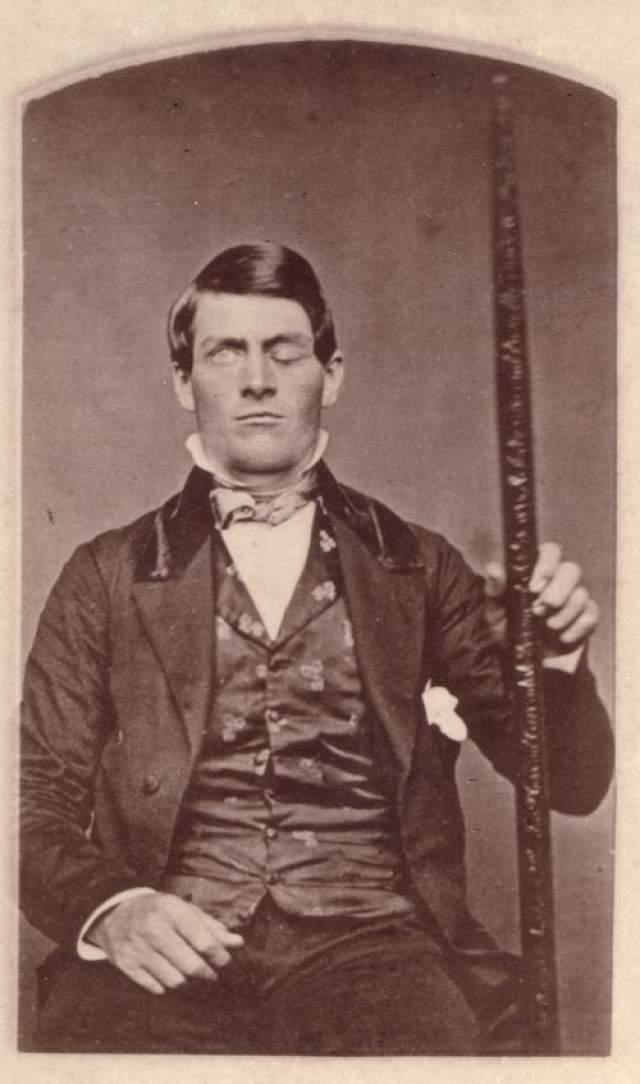 Металлический прут проткнул насквозь голову мужчины Случай выживания Финеаса Гейджа, который произошел еще в 19-м веке, до сих пор считается чудом. В те времена этот инцидент был не просто невероятным.
