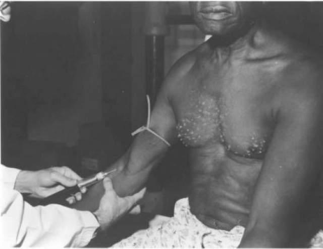 Но здешние ученые скрыли от испытуемых факт существования пенициллина, и продолжили испытания экспериментальных веществ, мол, в поисках лекарств.
