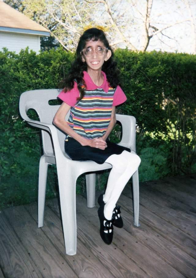 """В 2006 году, будучи 17-летней школьницей, Лиззи обнаружила в Сети ролик под названием """"Самая страшная женщина в мире"""" - он был о ней. Комментаторы, не стесняясь в выражениях, советовали ее родителям сжечь дочь или вернуться в прошлое и абортировать ее."""
