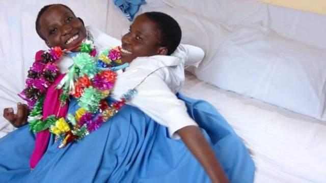 Мария и Консолата Мвакикути , родились в 1996 году - умерли в 2018 году. У близнецов были общие печень, легкие и некоторые другие органы, но в то же время у каждой были свое сердце, голова и пара рук.