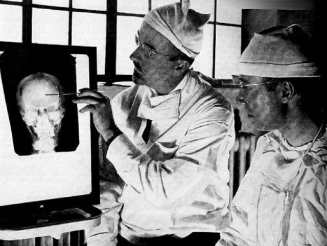 Фримэн продолжал подобные практики, не смотря на смертельные исходы и тяжелые последствия с распадом психики пациентов, вплоть до своей смерти в возрасте 76 лет.