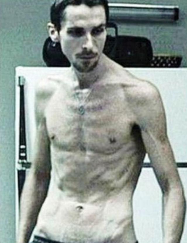 Он сбросил почти 30 кг за четыре месяца, после чего врачи рекомендовали ему остановиться, иначе в скором времени он окажется близок к смерти.