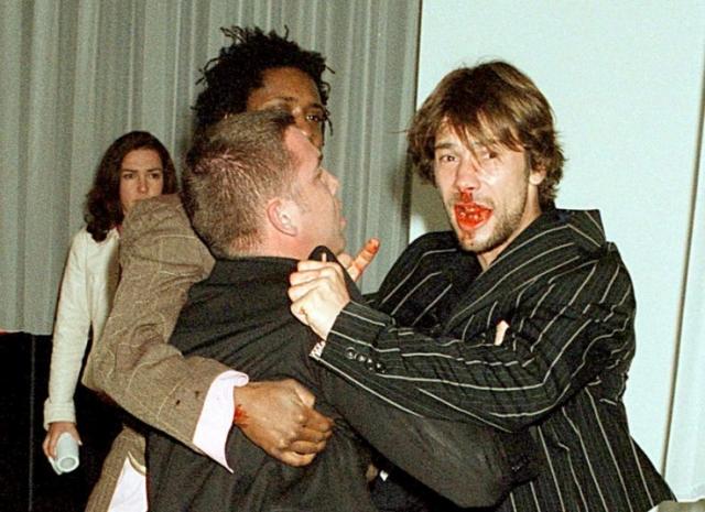 Почувствовавший себя загнанным в угол, фотограф ударил Джей Кея лбом в нос, из-за чего певец упал на спину.