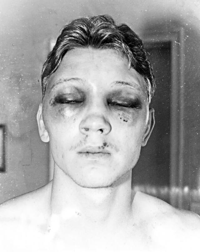 Ресто с самого начала поединка захватил инициативу в свои руки, Билли не успевал прийти в себя от сокрушительных ударов, к концу боя превратившись в сплошной кровавый отек.