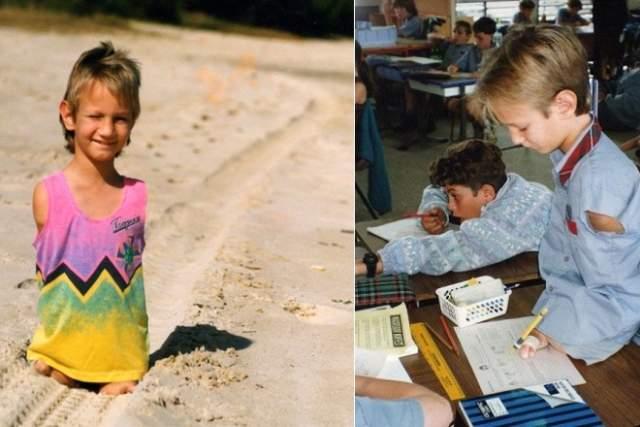 Спустя годы хирурги попытались выжать максимум из возможностей Ника на более или менее нормальную жизнь: прооперировали стопу, разделили пальцы, и Вуйчич научился ходить, плавать, кататься на скейте, сёрфинговой доске, играть на компьютере и писать.