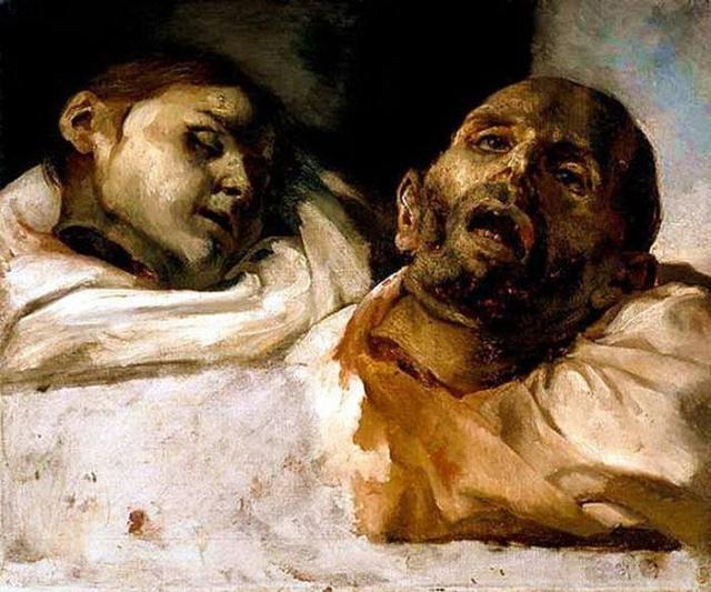 «Отрубленные головы» Самая известная работа Теодора Жерико– это «Плот Медузы», огромная картина, написанная в романтическом стиле. Жерико пытался разбить рамки классицизма, перейдя к романтизму. Эти картины были начальным этапом его творчества. Для своих работ он использовал настоящие конечности и головы, которые находил в моргах и лабораториях.