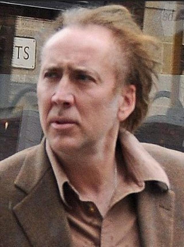 На самом же деле актер стремительно теряет волосы.