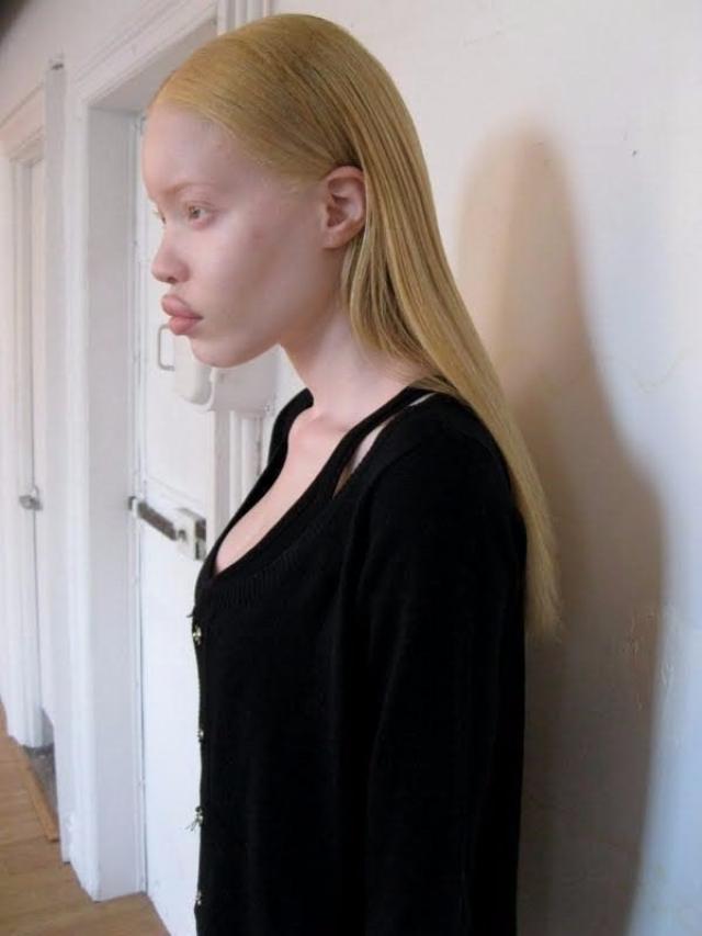 Девушку заметил фотограф Шамир Хан, а с 2009 года началась ее карьера в Ford Models Europe - Paris и Elite Model Management - New York. Ее тут же заметили такие бренды, как M.A.C, Mirza Mperial, Norma Ishak, а Бейонсе позвала в свой клип Pretty Hurts.